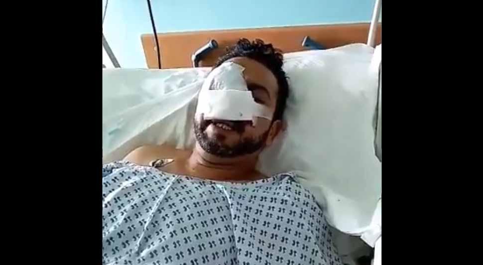 Civil terminó con estallido ocular, fracturas faciales y traumatismo encéfalo craneano: Se acusa impacto de bomba lacrimógena