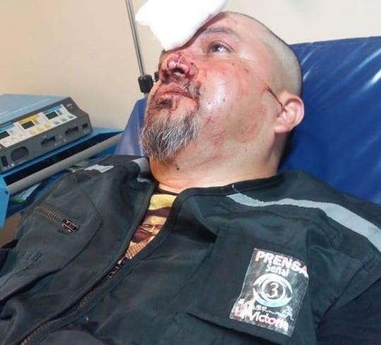 Carabineros disparó lacrimógena en cabeza de camarógrafo de La Victoria: Se suma a lumazo en rostro a reportera argentina
