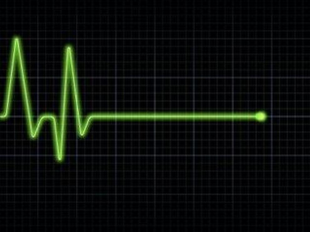 Descubren un método que podría reducir el riesgo de muerte súbita cardíaca
