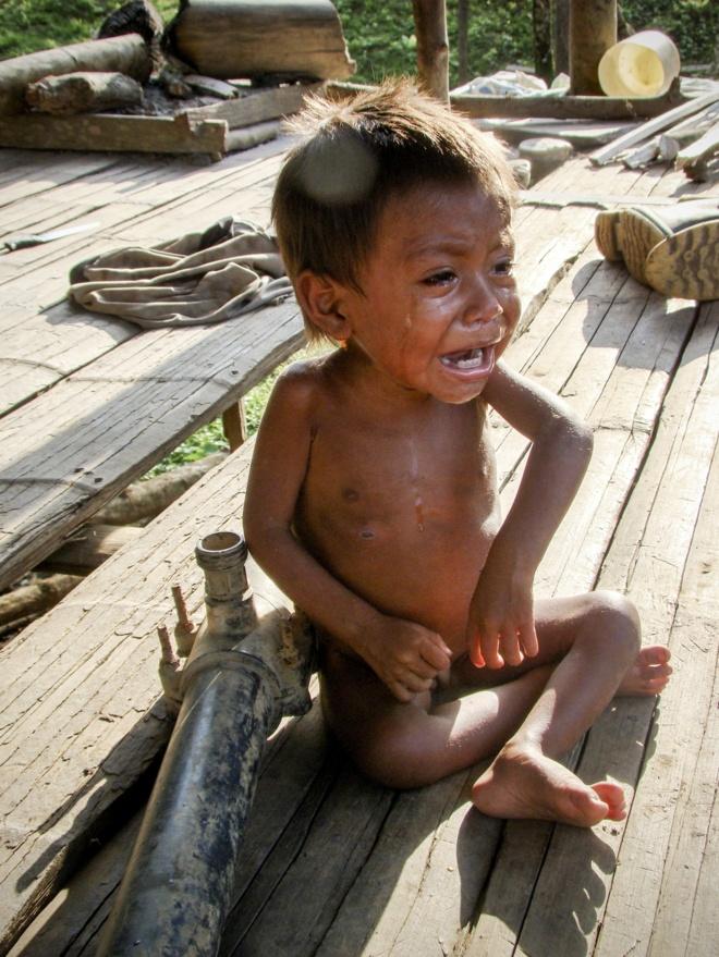 Las precarias condiciones y desnutrición que azotan al pueblo Wayú