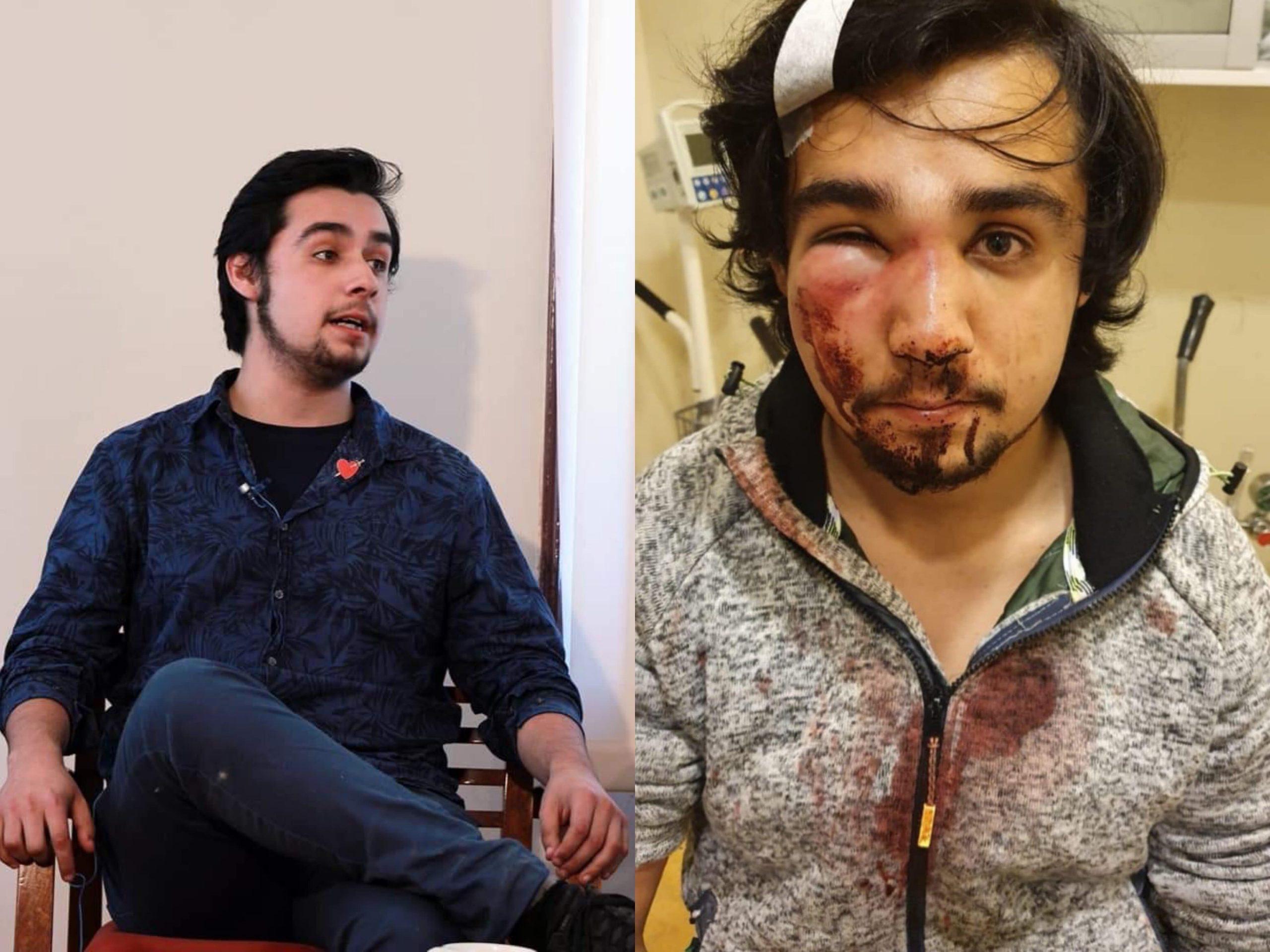 Presidente de las Juventudes Socialistas de Puerto Montt recibió brutal golpiza de Carabineros