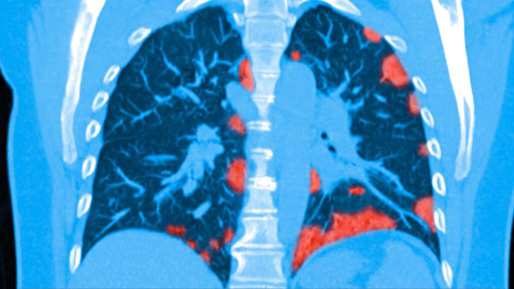 ¿Qué tan graves son los daños que deja el coronavirus en los pulmones de quienes se recuperan?
