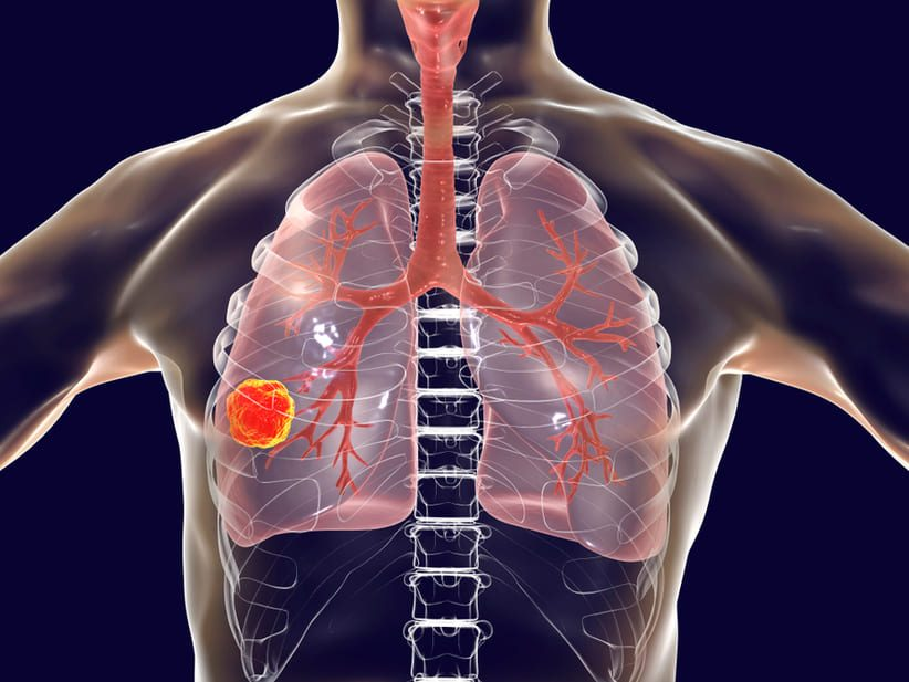 Describen el grave impacto que tendrá la cuarentena en cifras de tuberculosis