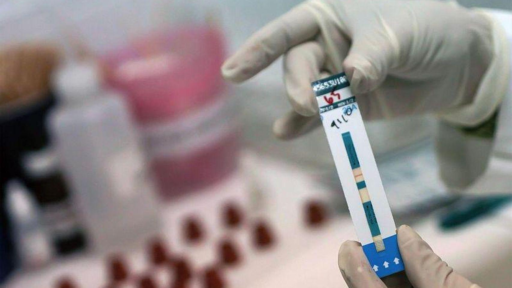 ¿Cuál es la mayor semejanza entre el SARS-CoV-2 y el VIH?
