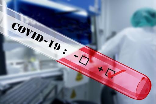 Osorno: 900 funcionarios del Hospital Base San José fueron testeados por COVID-19