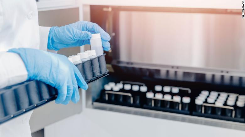 Escándalo con ginecólogo abre debate sobre la concepción por donación de esperma en Holanda