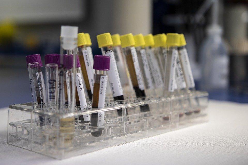 Probarán análisis de sangre que podría detectar signos de unos 50 tipos de cáncer