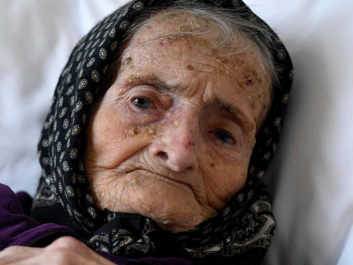 Asombroso: Mujer de 99 años superó el Covid-19 en Croacia