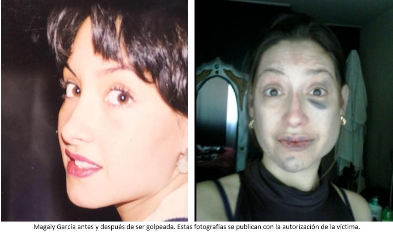 Mujer clama por justicia: hace dos años denunció a millonario Alberto Avayú por fracturar su rostro y Fiscalía intenta cerrar causa sin sanciones