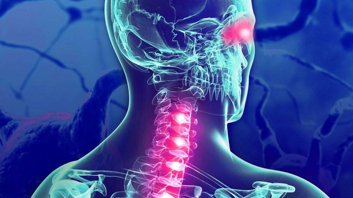 Científicos descubren tres nuevos subtipos de esclerosis múltiple