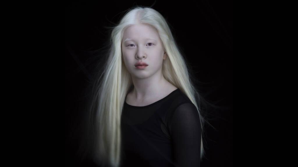 La motivadora historia de Xueli: la albina que se convirtió en modelo de Vogue