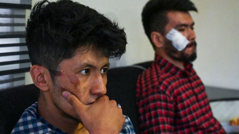 Con palos, cables y tubos talibanes castigaron a dos periodistas en Kabul